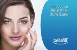 Bellafill® Receives FDA Approval For Treatment Of Acne Scars