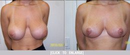 Breast Reduction 04